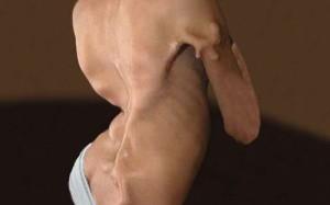 Найдена причина редкой болезни, превращающей мышцы в кости