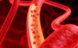 Очищение сосудов от холестерина: три действенных рецепта