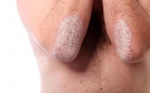 Постоянный контроль над псориазом обеспечивает легкое течение заболевания