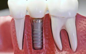 Имплантация зубов: о процедуре