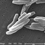 Ученые выяснили, почему туберкулез не уничтожил все человечество