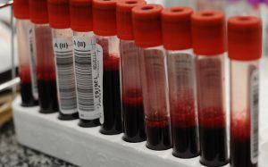 СМИ: ученые из Китая разработали методику определения группы крови за две минуты