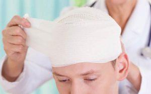 Рак головы и шеи: стадии, диагностика, лечение