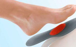 Особенности и преимущества ортопедических стелек при плоскостопии