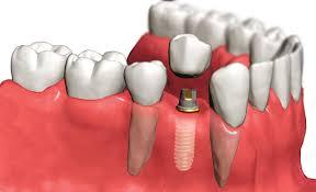 Ровные и красивые зубы — это реально!