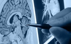 Ученые нашли способ вернуть потерянные воспоминания