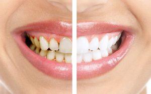 Профилактическая чистка зубов, варианты лечения и исправление прикуса в городе Харьков