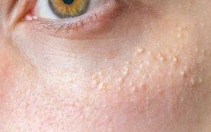 Гепатит и что мы о нём знаем?