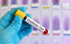 Креатинин в анализе крови