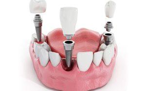 Методы имплантации зубов: какие лучше