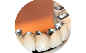 Зубные коронки из металлокерамики