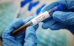 Методы обнаружения коронавирусной инфекции в организме человека