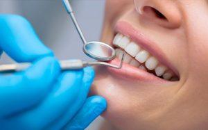 Dent Consult