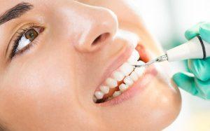 Ультразвуковая чистка зубов в стоматологических клиниках