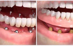 Варианты протезирования зубов