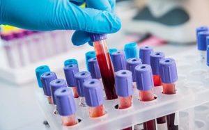 Для чего сдают анализ крови на NSE?