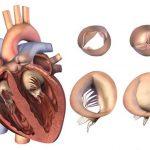 Пороки сердца и их особенности