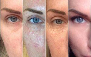 Современная косметология: какие препараты применяются профессионалами